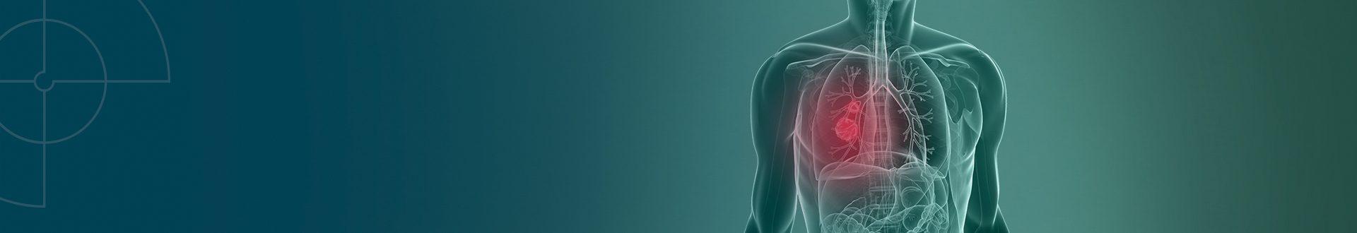O câncer de pulmão é responsável por cerca de 28 mil casos novos por ano