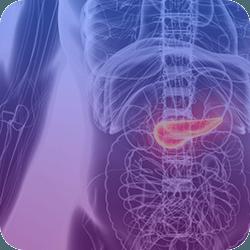 Infográfico Câncer de Pâncreas