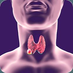 Infográfico Câncer de Tireoide